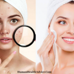 how-to-get-rid-of-pimples-naturally