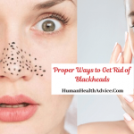 how to Get Rid of Blackheads (1)